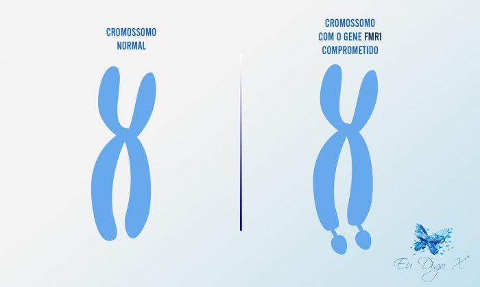 cromossomo-x-fragil-e-normal